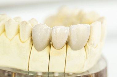 Dental Crowns and Bridge