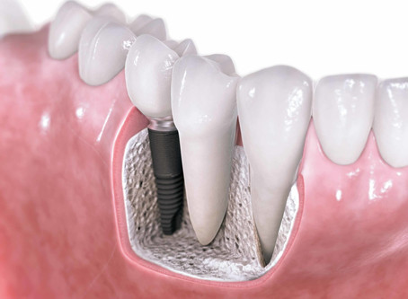 Looking For An Implant Dentist In Essex