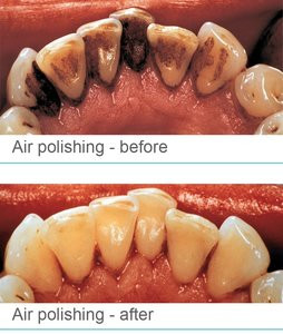 All About Air Polishing Teeth