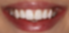 after teeth straightening at billericay dental care