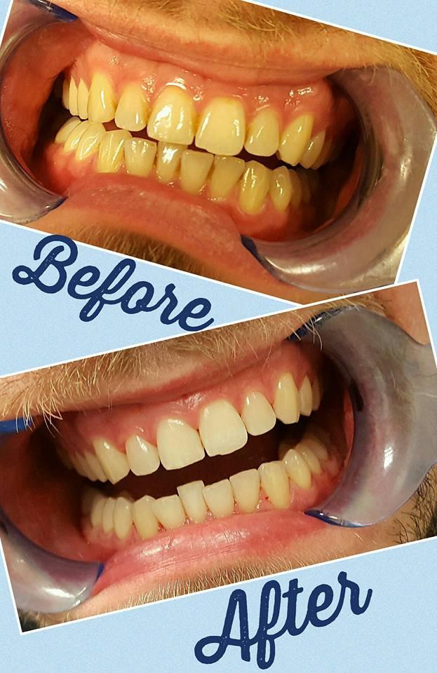 Air Polishing @  Billericay Dental Care