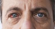 Conheça-os-principais-Sinais-e-Sintomas-