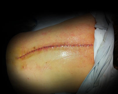 Outdated Surgical Methods in Failed Back Surgery