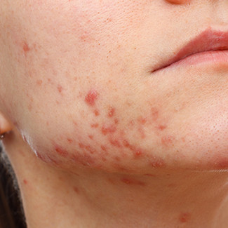 Do You know About Your Acne Scars?