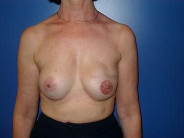 reconstruction sein prothèse symétrisation augmentation mammaire prothèse