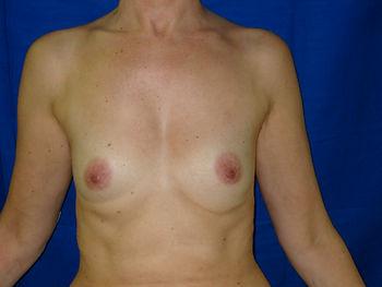 cancer du sein reconstruction prothèse