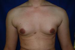 Gynecomasti 010  avant