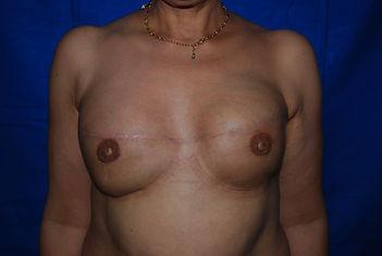 reconstruction mammaire bilatérale prothèse après cancer