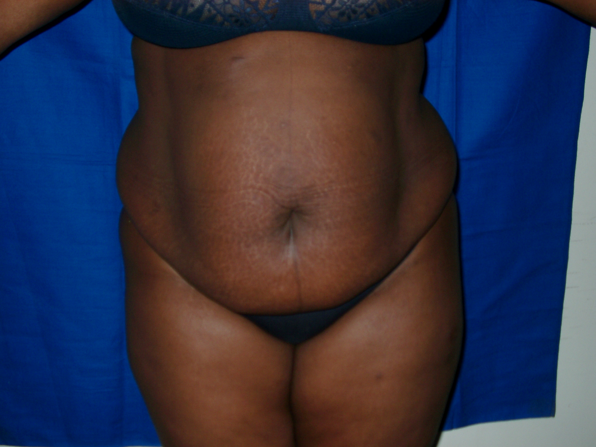 Plastie abdominale (1)