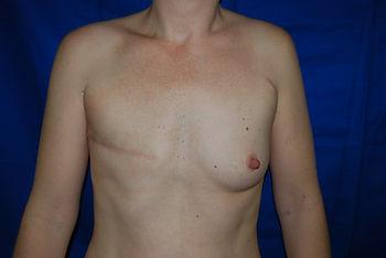 Mastectomie après cancer avant reconstruction