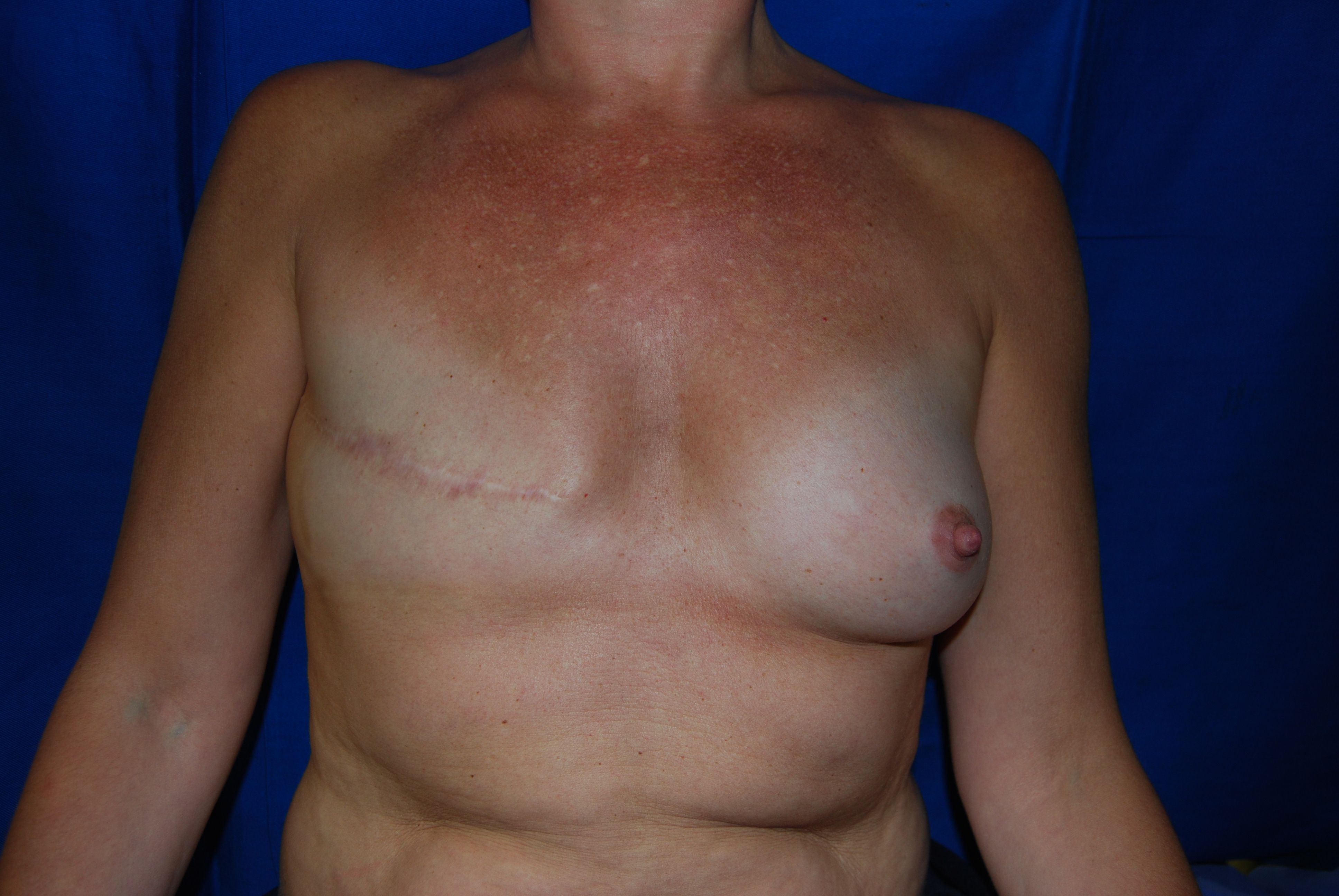Recontruction lipofilling 30