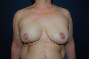 reconstruction bilaterale prothèse preventive