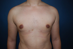 Gynecomastie  011 ap