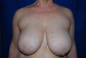 mastectomie prophylactique génetique BRCA1 BRCA2 préventive