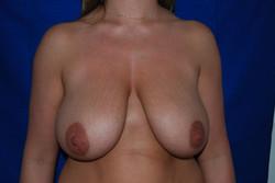 Ptose mammaire (1)