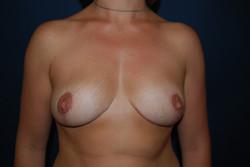 Ptose mammaire (2)