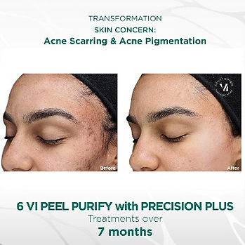 VIPeel_PurifyWITHPrecisionPlus_Beforeand
