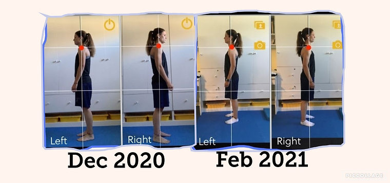 Posture before after.jpg