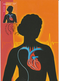 Cardiac pacing