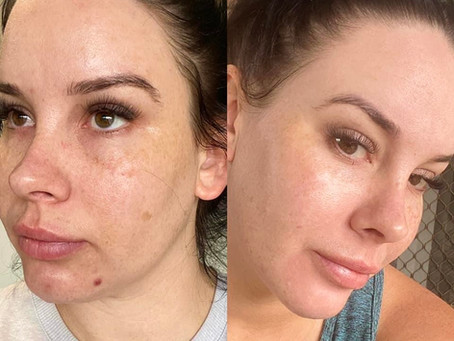Another ecstatic Collagen User