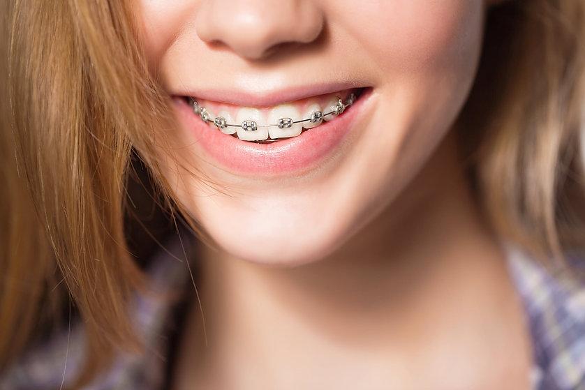 ابتسامة لتقويم الاسنان - القاهرة