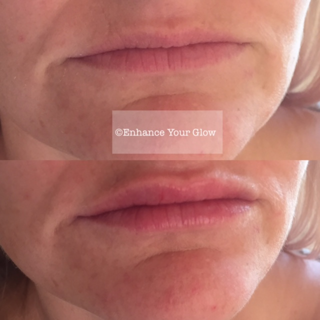 Lip Enhancement Cornwall