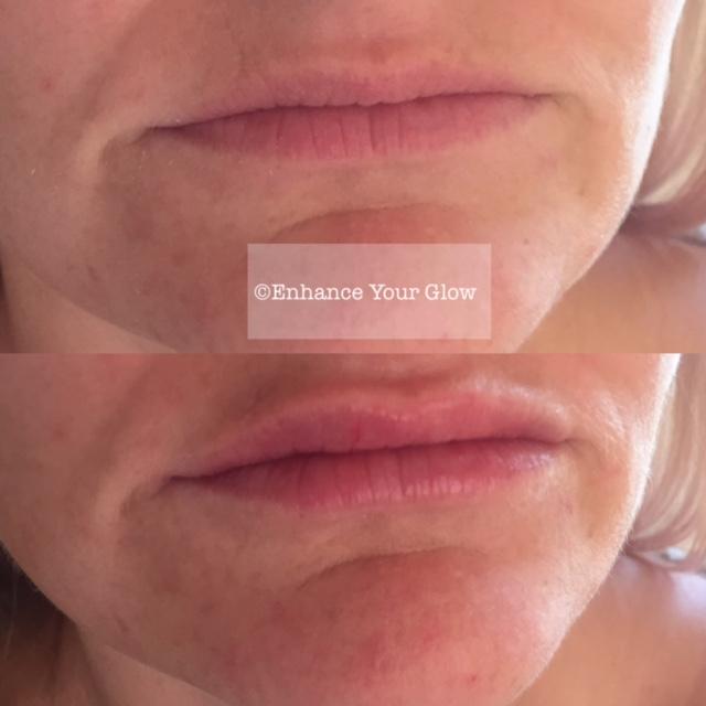 Lip Enhancement Cornwall