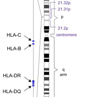HLA - Human Leukocyte Antigen