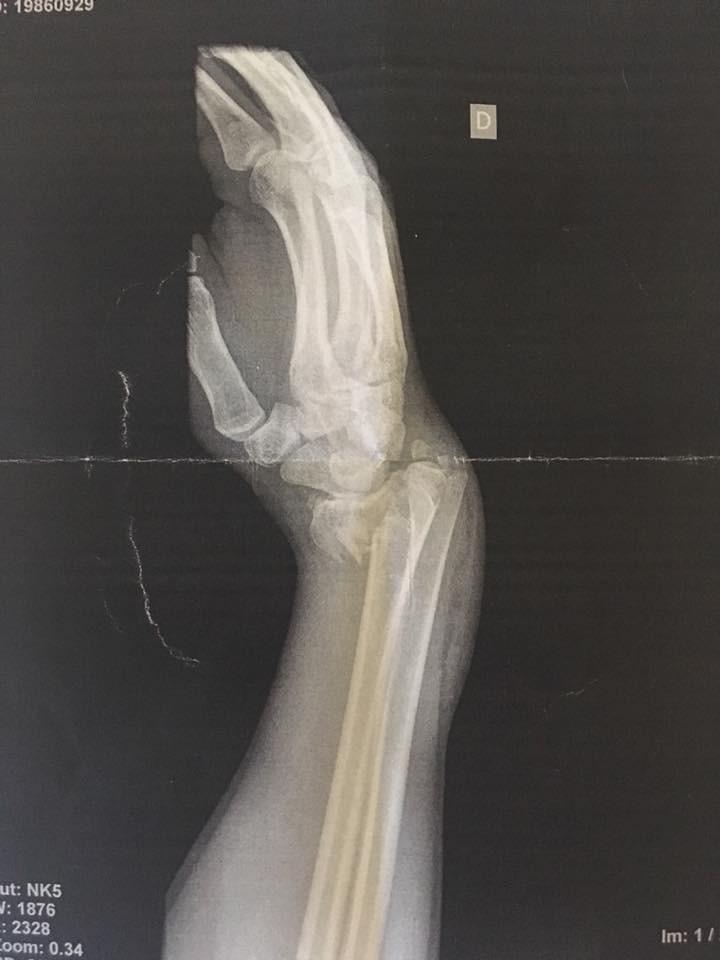 Natalie's broken wrist x-ray