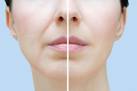 Nasolabial lines (nose to mouth)