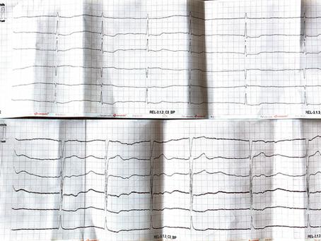 Kopfplatzwunde und ein zufälliges 12-Kanal-EKG, männlich 81 Jahre