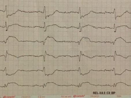 Auflösung: Brustschmerzen und Luftnot. Männlich, 61 Jahre