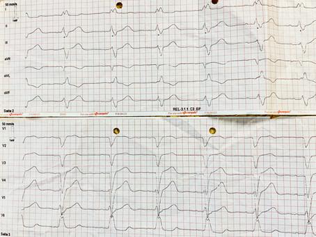 Auflösung: Akutes Nasenbluten und ein zufälliges 12-Kanal-EKG. Männlich, 77 Jahre
