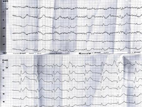 Auflösung von Teil 2: Männlich, 70 Jahre Brustschmerzen seit 30 min. Keine Vorerkrankungen.