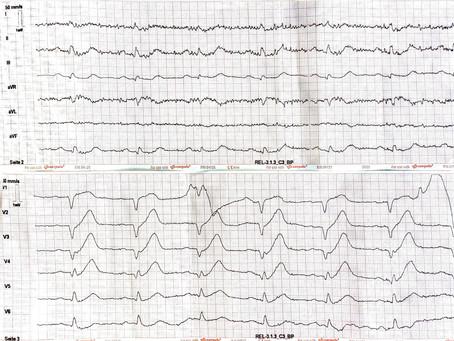 Auflösung: Männlich, 70 Jahre Brustschmerzen seit 30 min. Keine Vorerkrankungen.