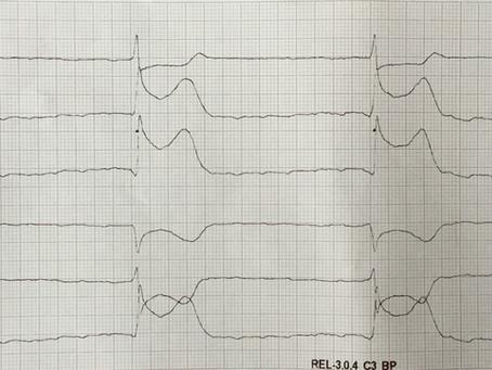 Auflösung: Brustschmerzen mit Ausstrahlung in den Kiefer. Männlich, 68 Jahre