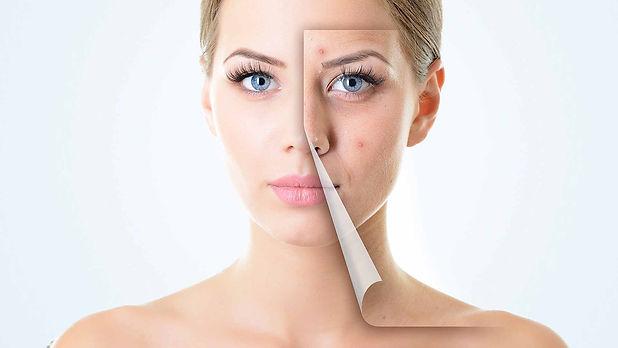 active-acne-concerns3.jpg