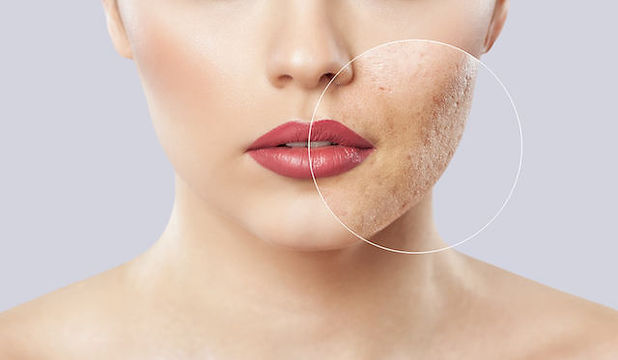 clinics-for-acne-treatment-in-singapore.