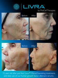 Collagen treatment at Sontuosa facial spa