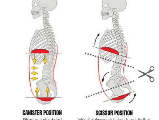 Rib Flare and Improper Rib Cage Position: Manual & Movement Interventions