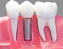 Dentist Paphos , Implants Paphos , Paphos Dental Clinic, Cyprus Dentist, Dental Crown, Dental Bridge , Dental Tourism Paphos, Dental Tourism Cyprus , Reccomended Dentist Paphos