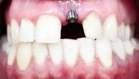 Implant to replace missing tooth