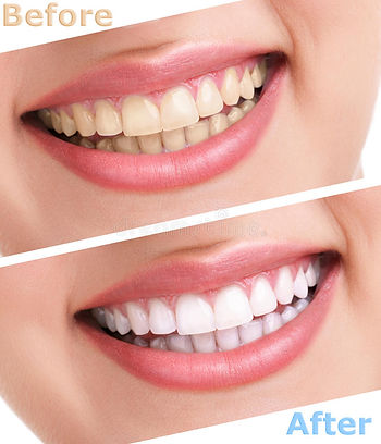 teeth-whitening before and after.jpg