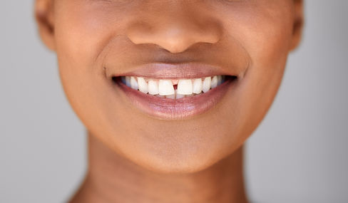 Invisalign for gapped teeth correction