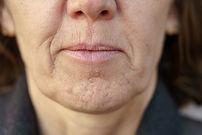 Botox for Chin dimpling