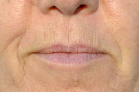 Botox treatment for smokers lines
