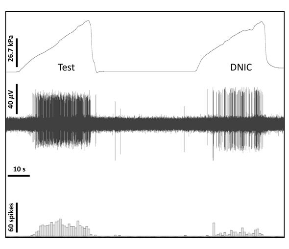 Diffuse noxious inhibitory control (DNIC) can be quantified using a cuff-cuff paradigm