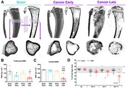 Bone cancer pain