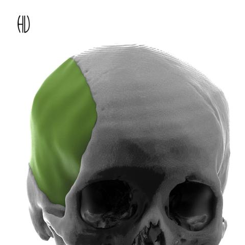 Cranial Reconstruction