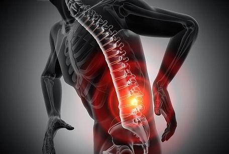 Rückenschmerzen-Blog-1000x675.jpg